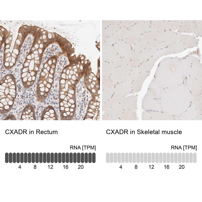 CAR Antibody in Immunohistochemistry (IHC)