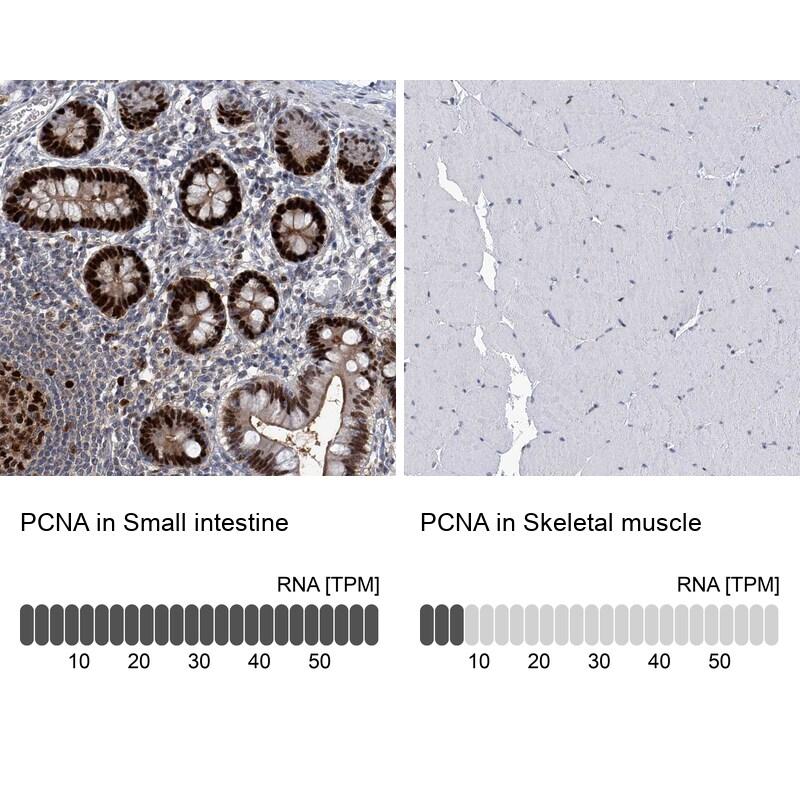 PCNA Antibody in Immunohistochemistry (IHC)