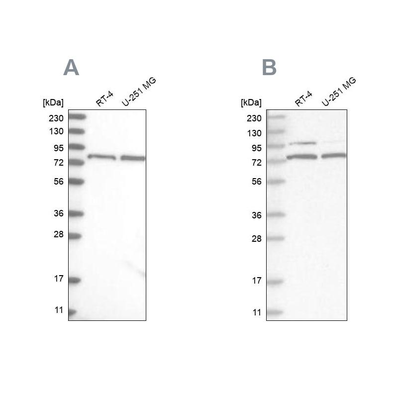 P2X7 Antibody in Western Blot (WB)