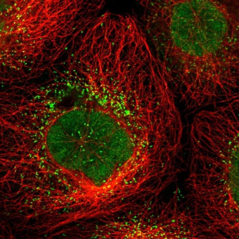 UPP2 Antibody in Immunocytochemistry (ICC)