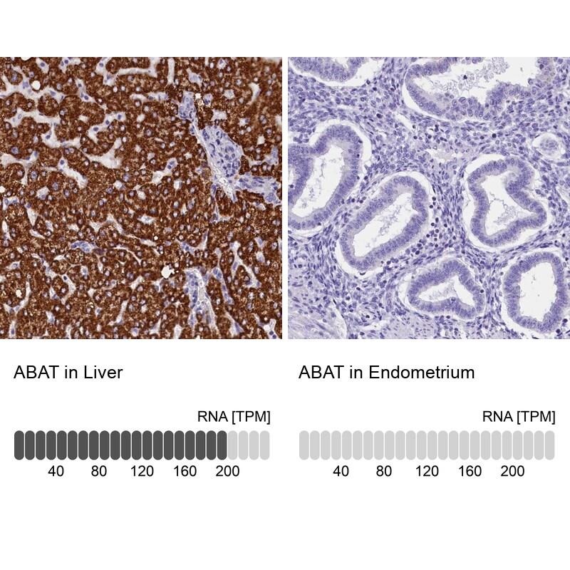ABAT Antibody in Immunohistochemistry (IHC)