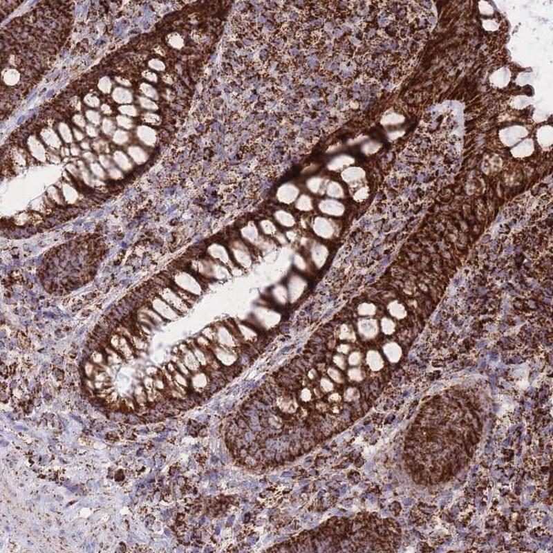 GSTM1 Antibody in Immunohistochemistry (IHC)