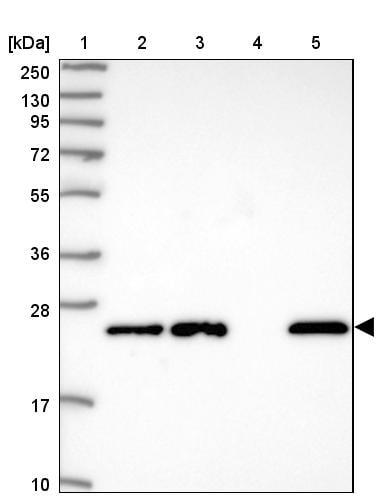 GSTM1 Antibody in Western Blot (WB)