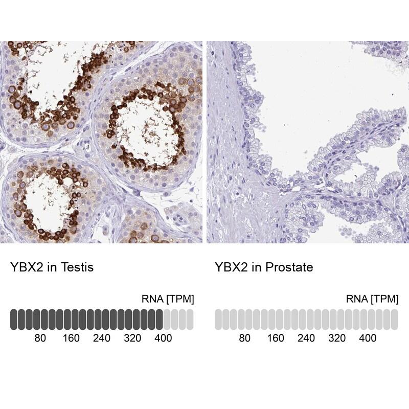 YBX2 Antibody in Immunohistochemistry (IHC)