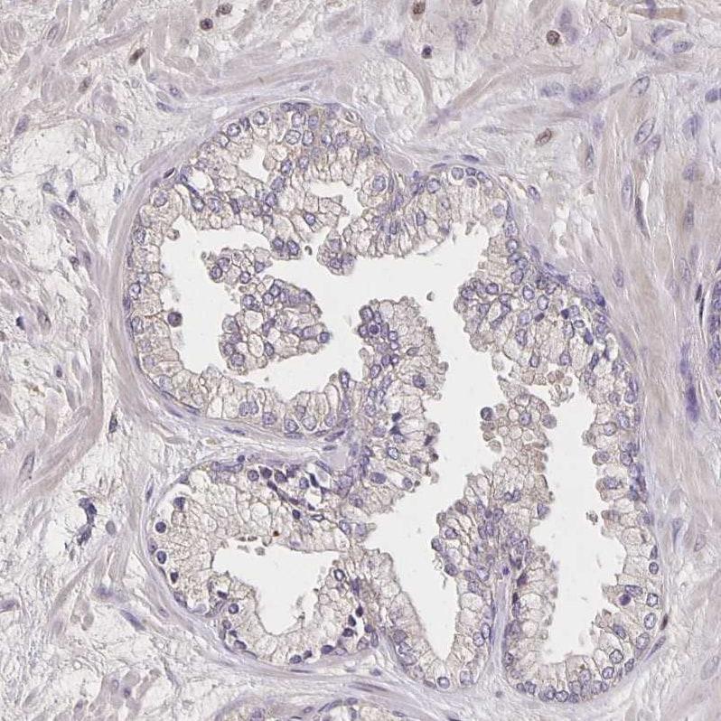 Noggin Antibody in Immunohistochemistry (IHC)