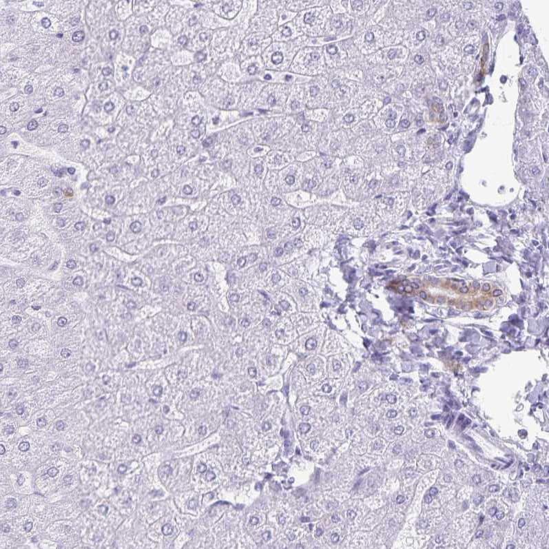 TGR5 Antibody in Immunohistochemistry (IHC)