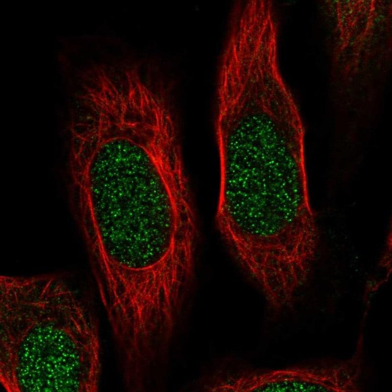 RPS19 Antibody in Immunocytochemistry (ICC)