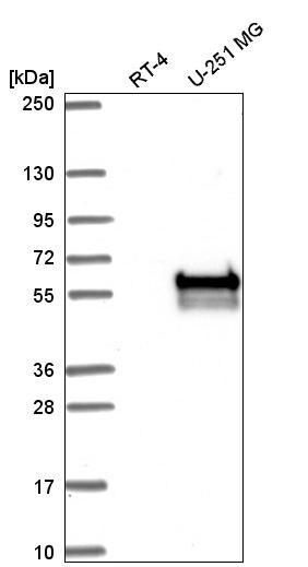 CERK Antibody in Western Blot (WB)