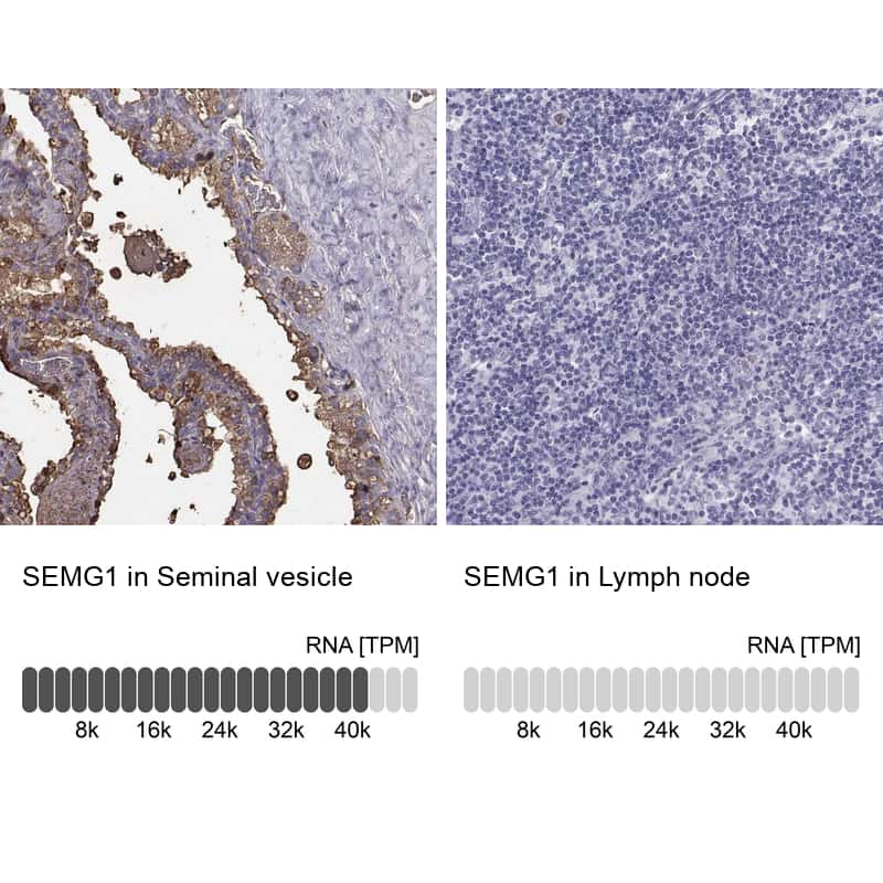 SEMG1 Antibody in Immunohistochemistry (IHC)