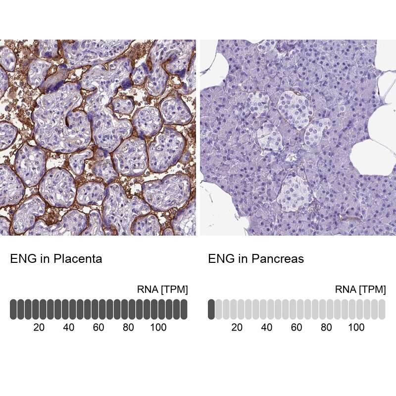 CD105 Antibody in Immunohistochemistry (IHC)