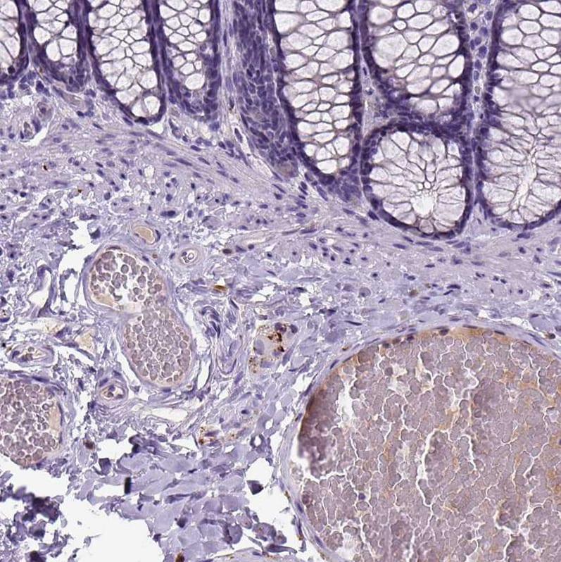 Dopamine beta Hydroxylase Antibody in Immunohistochemistry (IHC)