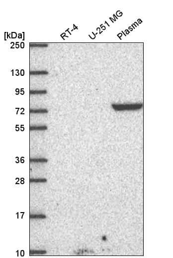 Dopamine beta Hydroxylase Antibody in Western Blot (WB)