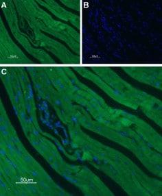 CaV1.2 Antibody in Immunohistochemistry (Paraffin) (IHC (P))