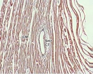 SLC8A1 Antibody in Immunohistochemistry (Paraffin) (IHC (P))