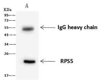 RPS5 Antibody in Immunoprecipitation (IP)