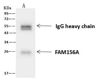 FA156 Antibody in Immunoprecipitation (IP)