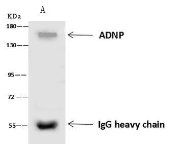 ADNP Antibody in Immunoprecipitation (IP)