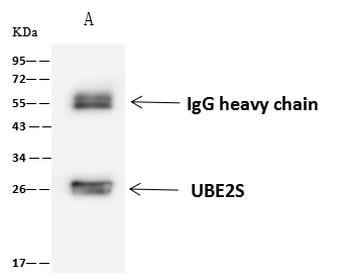 UBE2S Antibody in Immunoprecipitation (IP)