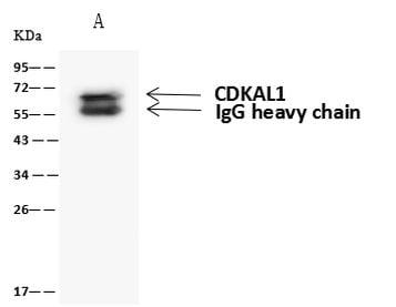 CDKAL1 Antibody in Immunoprecipitation (IP)