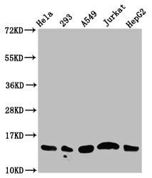 Acetyl-Histone Macro-H2A.1 (Lys13) Antibody in Western Blot (WB)