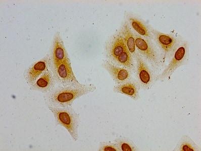 Acetyl-Histone Macro-H2A.1 (Lys36) Antibody in Immunocytochemistry (ICC)