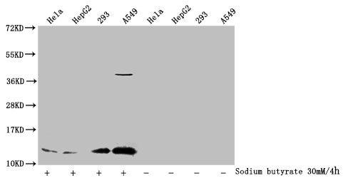 H4K91ac Antibody in Western Blot (WB)
