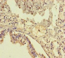 TMEM64 Antibody in Immunohistochemistry (Paraffin) (IHC (P))