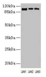 ZNF546 Antibody in Western Blot (WB)