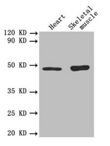 TGF beta-2 Antibody in Western Blot (WB)