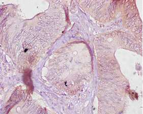 CES1 Antibody in Immunohistochemistry (Paraffin) (IHC (P))