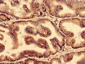 YIF1B Antibody in Immunohistochemistry (IHC)