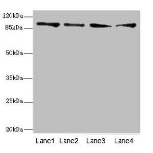TNNI3K Antibody in Western Blot (WB)