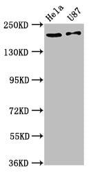 SCN10A Antibody in Western Blot (WB)