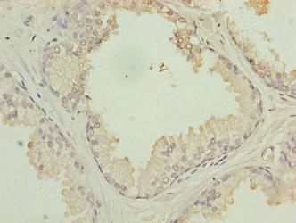 PTPLB Antibody in Immunohistochemistry (Paraffin) (IHC (P))