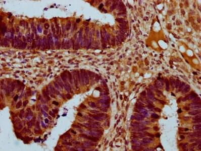 THNSL2 Antibody in Immunohistochemistry (Paraffin) (IHC (P))