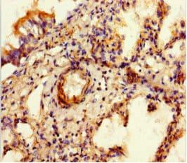 SULF1 Antibody in Immunohistochemistry (Paraffin) (IHC (P))