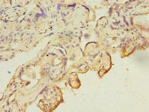 CA13 Antibody in Immunohistochemistry (Paraffin) (IHC (P))