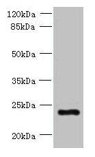 PQLC3 Antibody in Western Blot (WB)