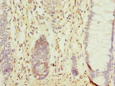 CCDC106 Antibody in Immunohistochemistry (Paraffin) (IHC (P))