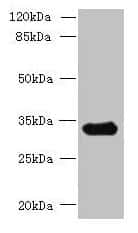 CCDC106 Antibody in Western Blot (WB)