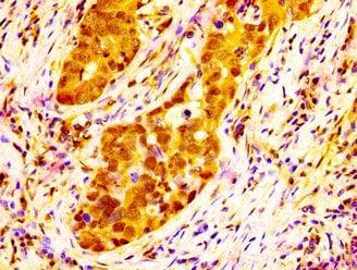 NAT10 Antibody in Immunohistochemistry (Paraffin) (IHC (P))