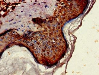 ST6GALNAC1 Antibody in Immunohistochemistry (Paraffin) (IHC (P))