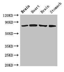 OATP2 Antibody in Western Blot (WB)