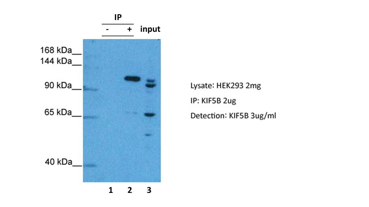 Kinesin 5B Antibody in Immunoprecipitation (IP)