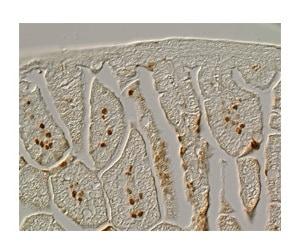 FOXF1 Antibody in Immunohistochemistry (IHC)