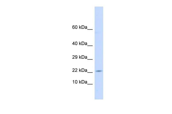 CRF Antibody in Western Blot (WB)