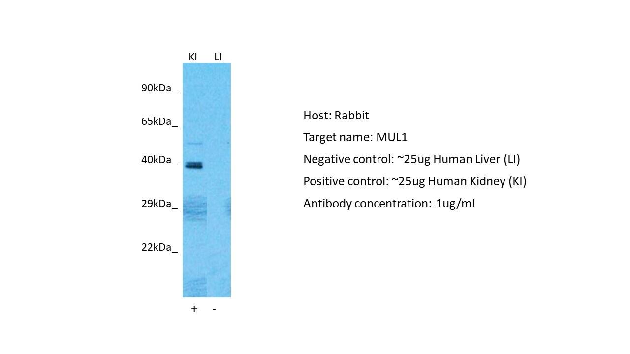 MUL1 Antibody in Western Blot (WB)
