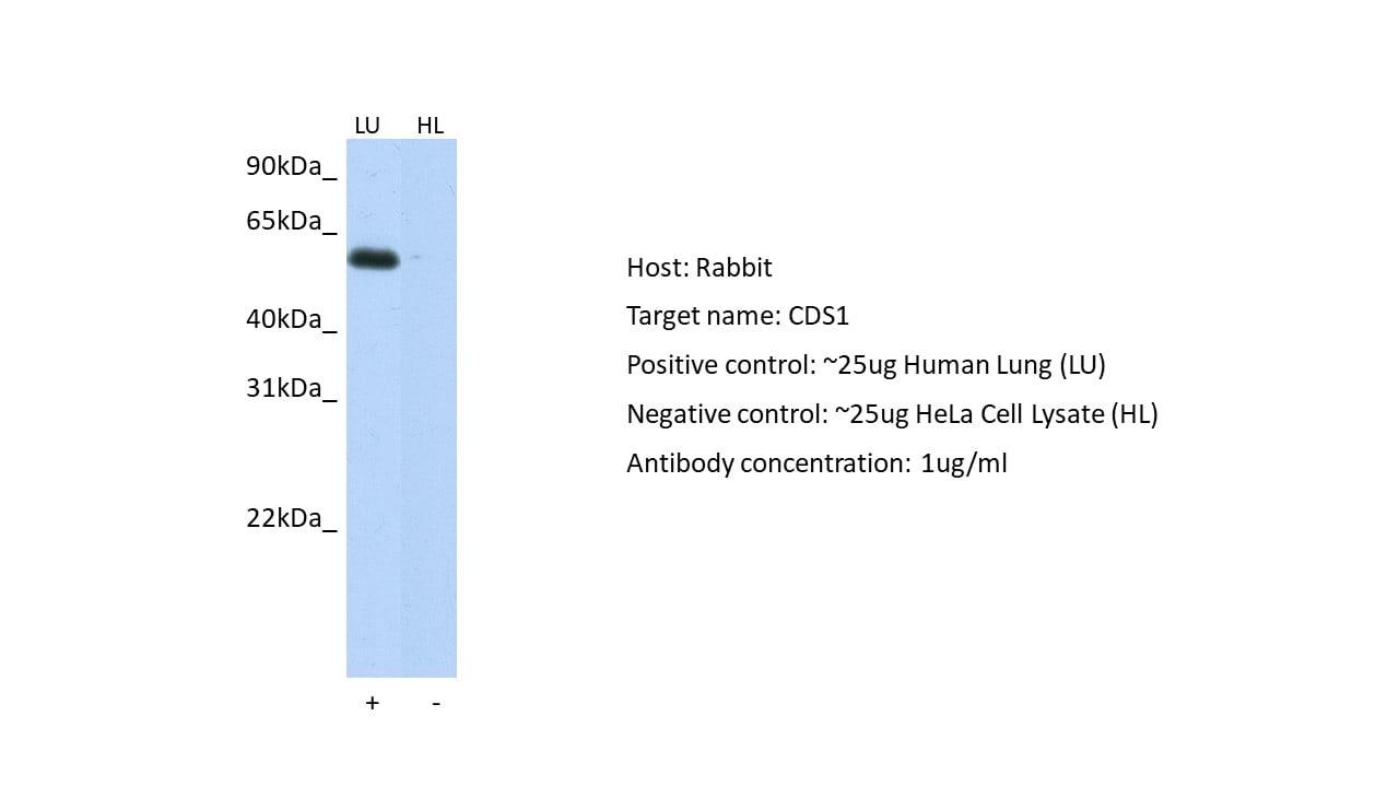CDS1 Antibody in Western Blot (WB)