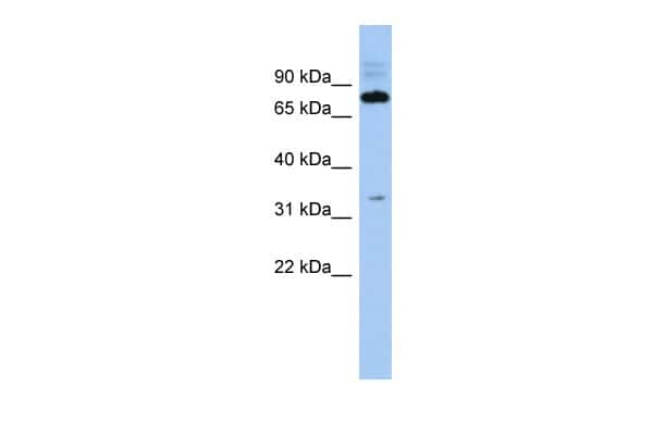 FAM161B Antibody in Western Blot (WB)