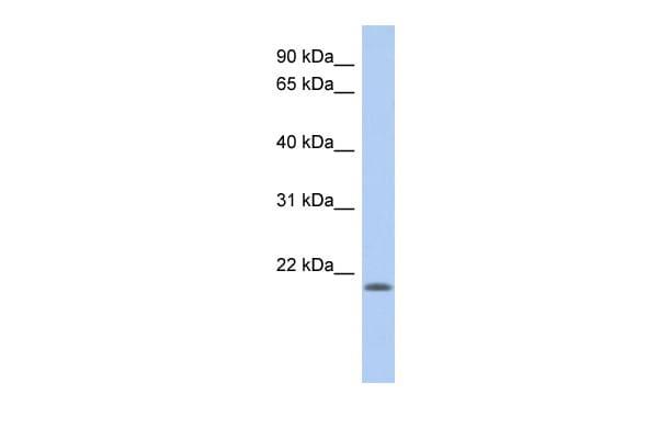 CHAC2 Antibody in Western Blot (WB)